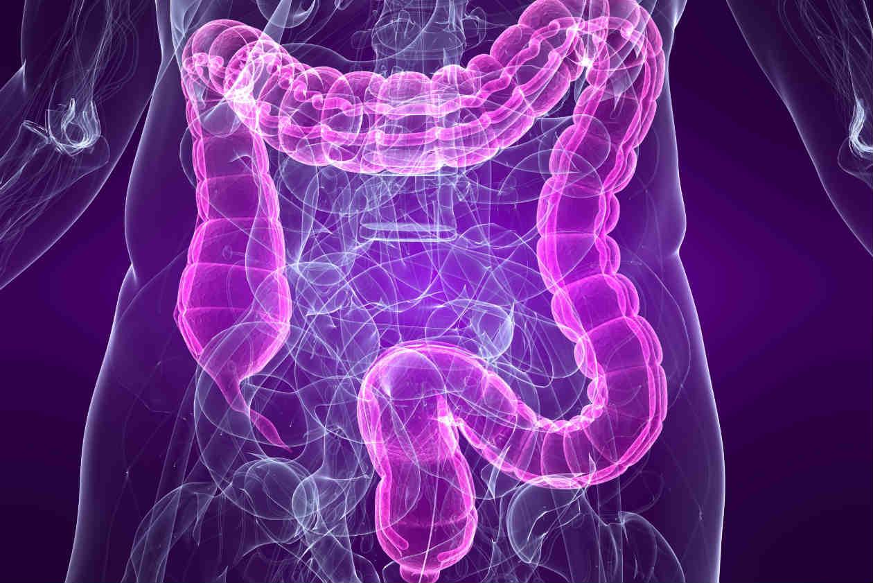 remedios-naturales-para-el-colon-irritable-1